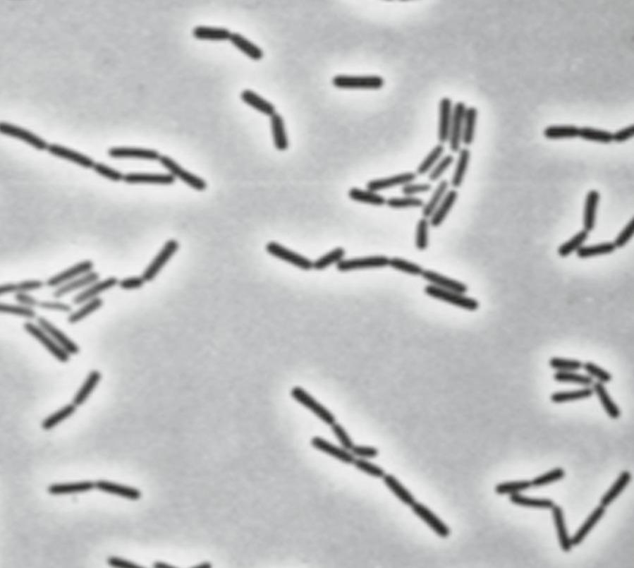 Lactobacillus agilis